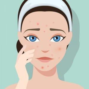Que faire contre l'acné & les boutons?